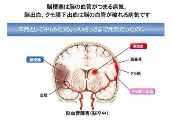 gen-hoshino-subarachnoid hemorrhage-Second time